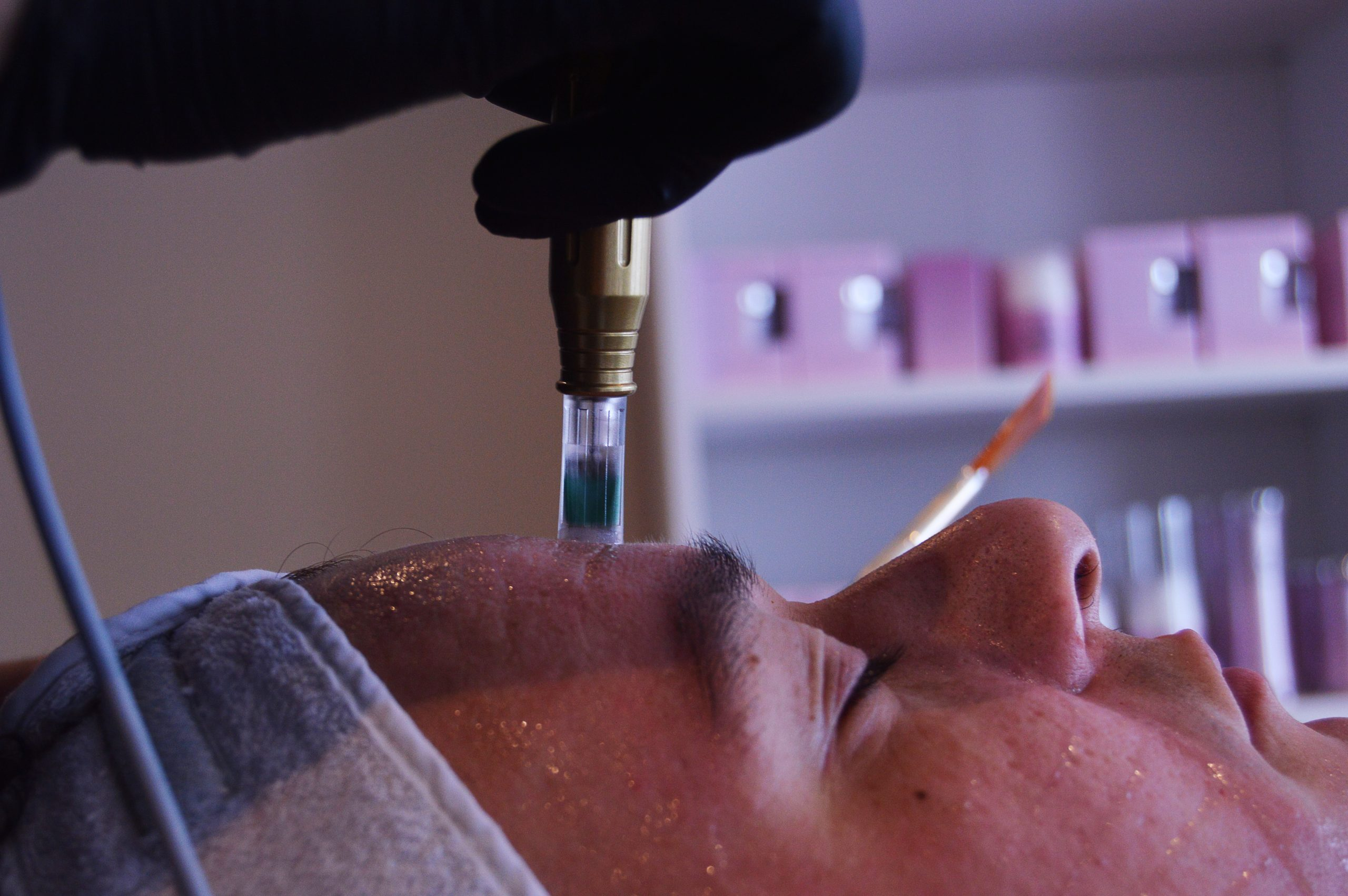 Micro Needling | Beautysalon Carmen